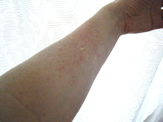 Flux 4 Skin