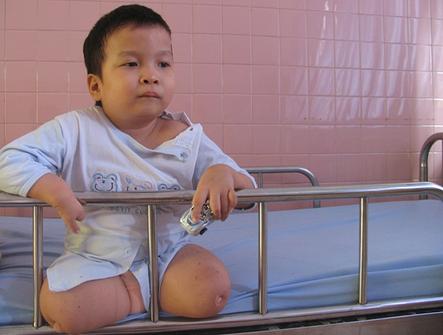 A child plays with a small car in Tu' Du' hospital.  He will live his life in a ward here, in downtown Ho Chi Minh City.