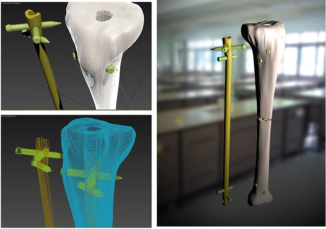 3D Tibial Screw Insertion with External Fixation Device
