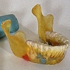 1985: Milk Teeth
