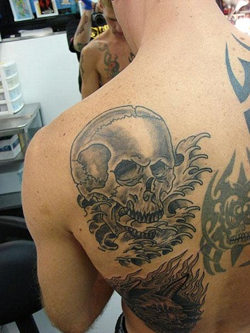 Chris O'donelle Skull (healed)