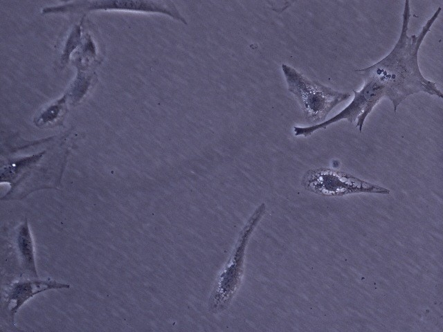 3T3 cells in culture