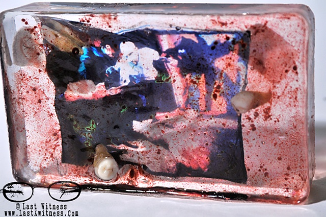 "photo emulsion of ""justin"" from the testimony series suspended in resin with real human teeth and artificial blood"