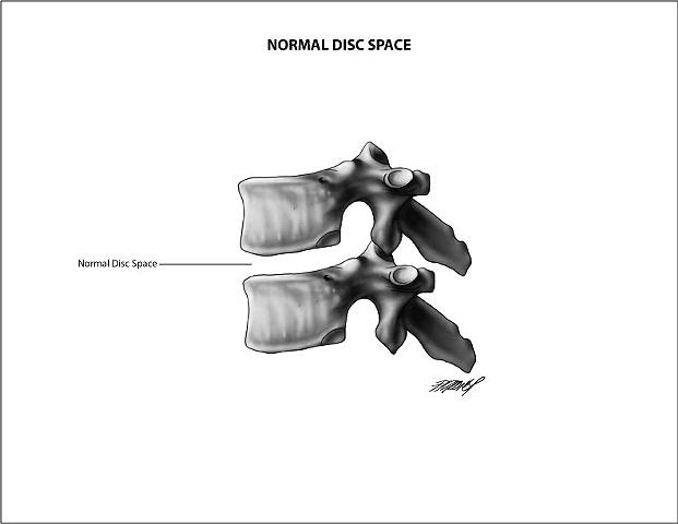 Normal Vertebral Disc