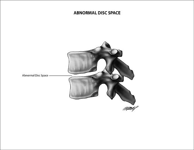 Abnormal Vertebral Disc