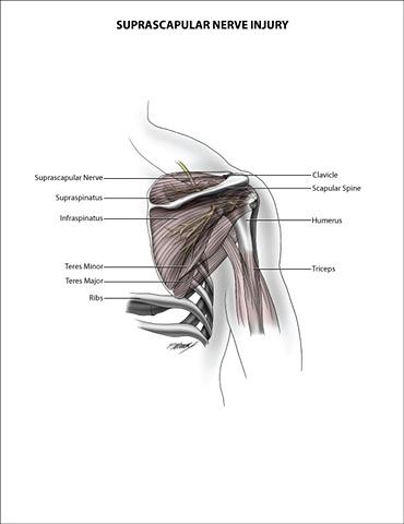 Suprascapular Nerve Injury