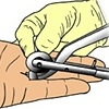 Ring Removal Method