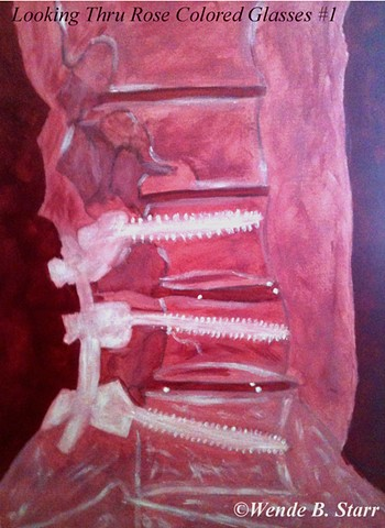 arachnoiditis, spinal cord injury, art for arachnoiditis, pain management, art therapy