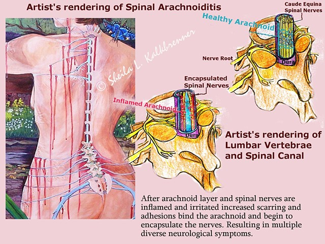 art for arachnoiditis, art and healing, Dr.Burton, Dr.Forest Tennant, back pain, arachnoiditis, Wellness Art,