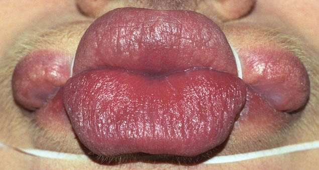 Anika Smulovitz Lips Untitled Manipulate 4