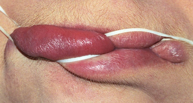 Smulovitz Lips Untitled (manipulate 1)