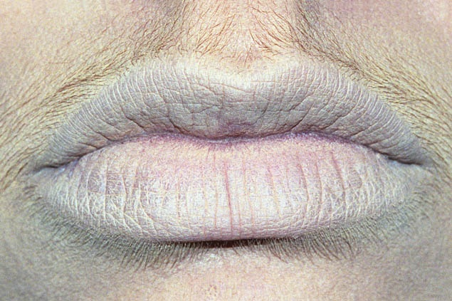 Smulovitz Lips Untitled (neutral)