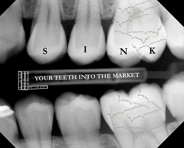 X-ray the market