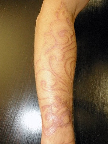 Aum and clouds cutting and skin peeling