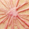 Dandelion scarification