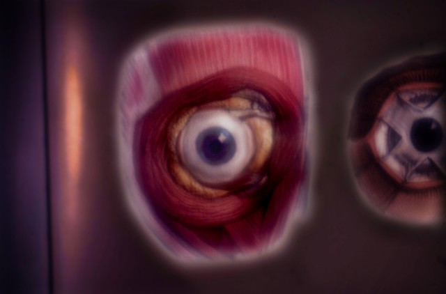"""Right Eyeball 2014 zone plate photograph archival pigment print 20""""x13"""" from """"The Atlas of Human Anatomy"""" by J. M Bourgery and N. H. Jacob, 1832-1854"""