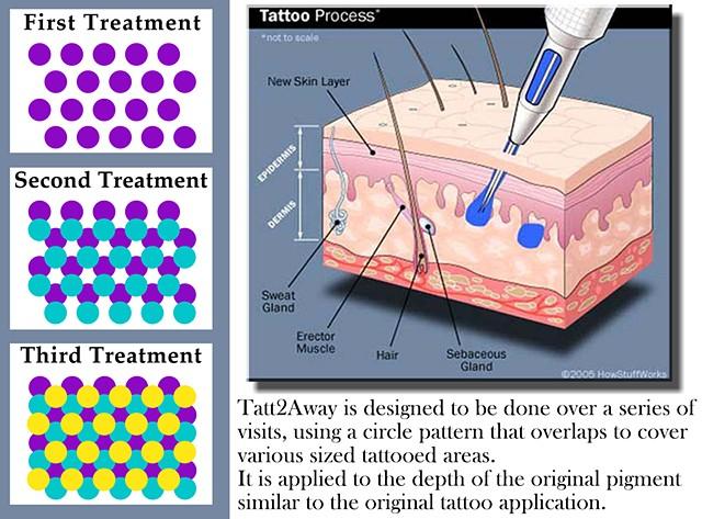Tatt2away removal pattern