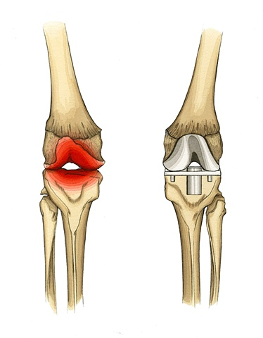 Pain Associated with the Degeneration of the Knee and the Replacement Knee