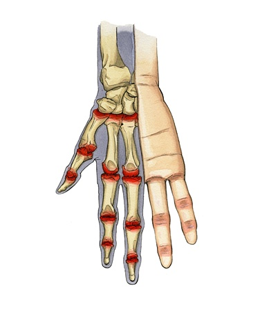 Pain Associated with Pain in the Hands