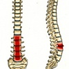 Pain Associated with with Back and a Slipped Disc
