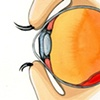 Detachment of the Retina