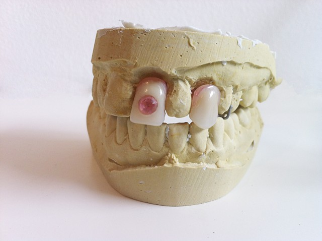 Plaster cast of mouth