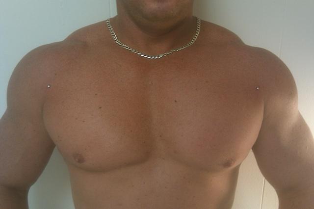 dermal's, dermal implants, chest dermals