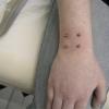 surface piercing by tatupaul