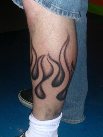 Leg Fire