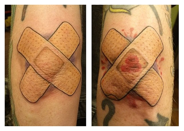 Band-aids on the Elbows