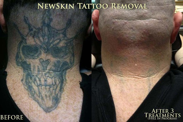 This is an in progress photo - this client has had 3 sessions, and has 1 or 2 more to go