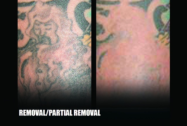 Partial Tattoo Removal (only removing part of a tattoo)