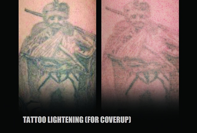 Tattoo Lightening (for coverup with new art)