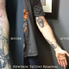 Laser tattoo removal - before and after 1