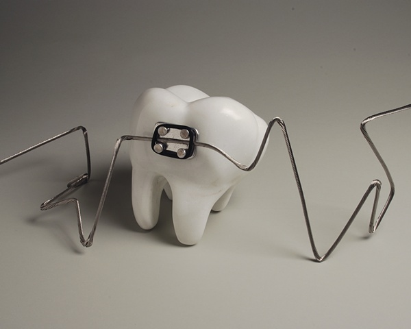 kevin vanek, Marble, Colorado, tooth, dentist, dental, aluminum, braces