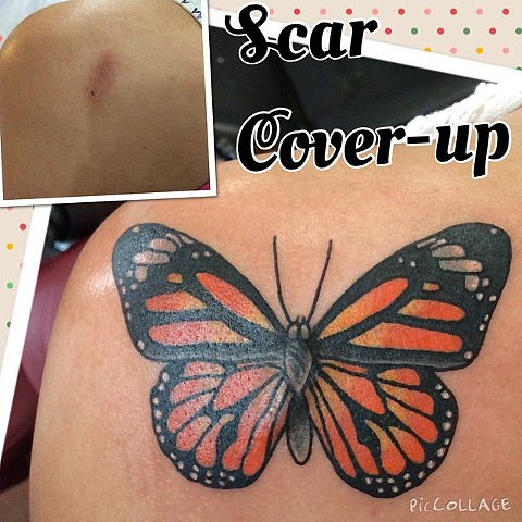 Butterfly Scar Cover-Up Tattoo