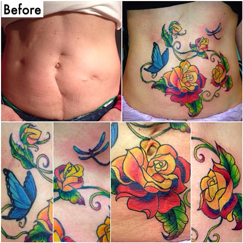 Tracy's scar cover-up!