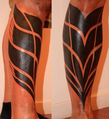 xanders leg