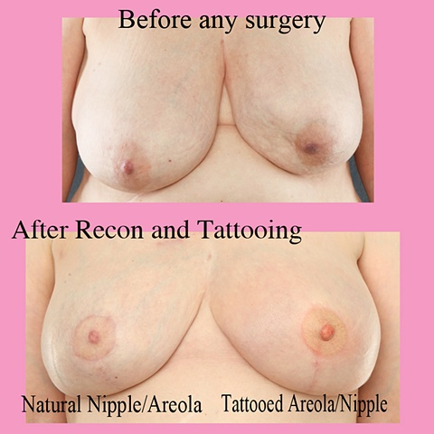 3-d unilateral nipple tattoo
