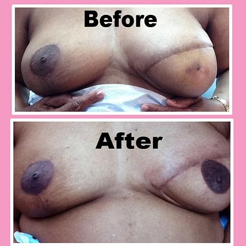 nipple tattoo (unilateral)