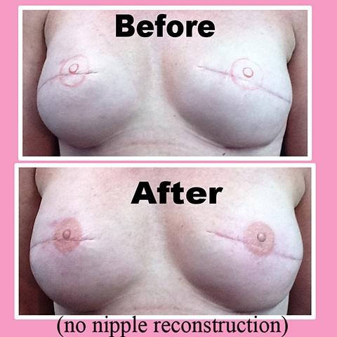 3-D nipple tattoo