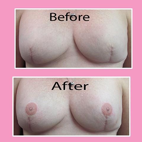 3-D nipple tattoos