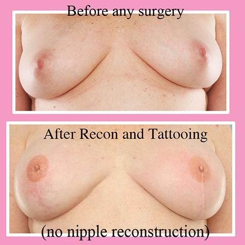 3-D nipple areola tattoo