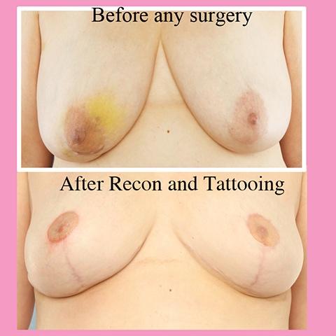 nipple areola tattoo