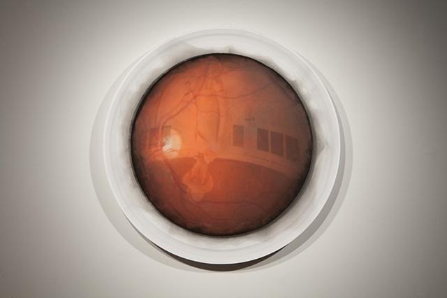 Retina Capture 1